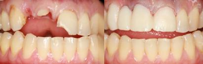 tandartsenpraktijk amsterdam chirurgie fietsongeval
