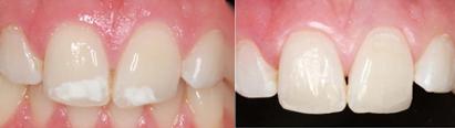 witte vlekjes op de tanden