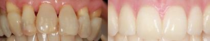 tandvlees afwijkingen